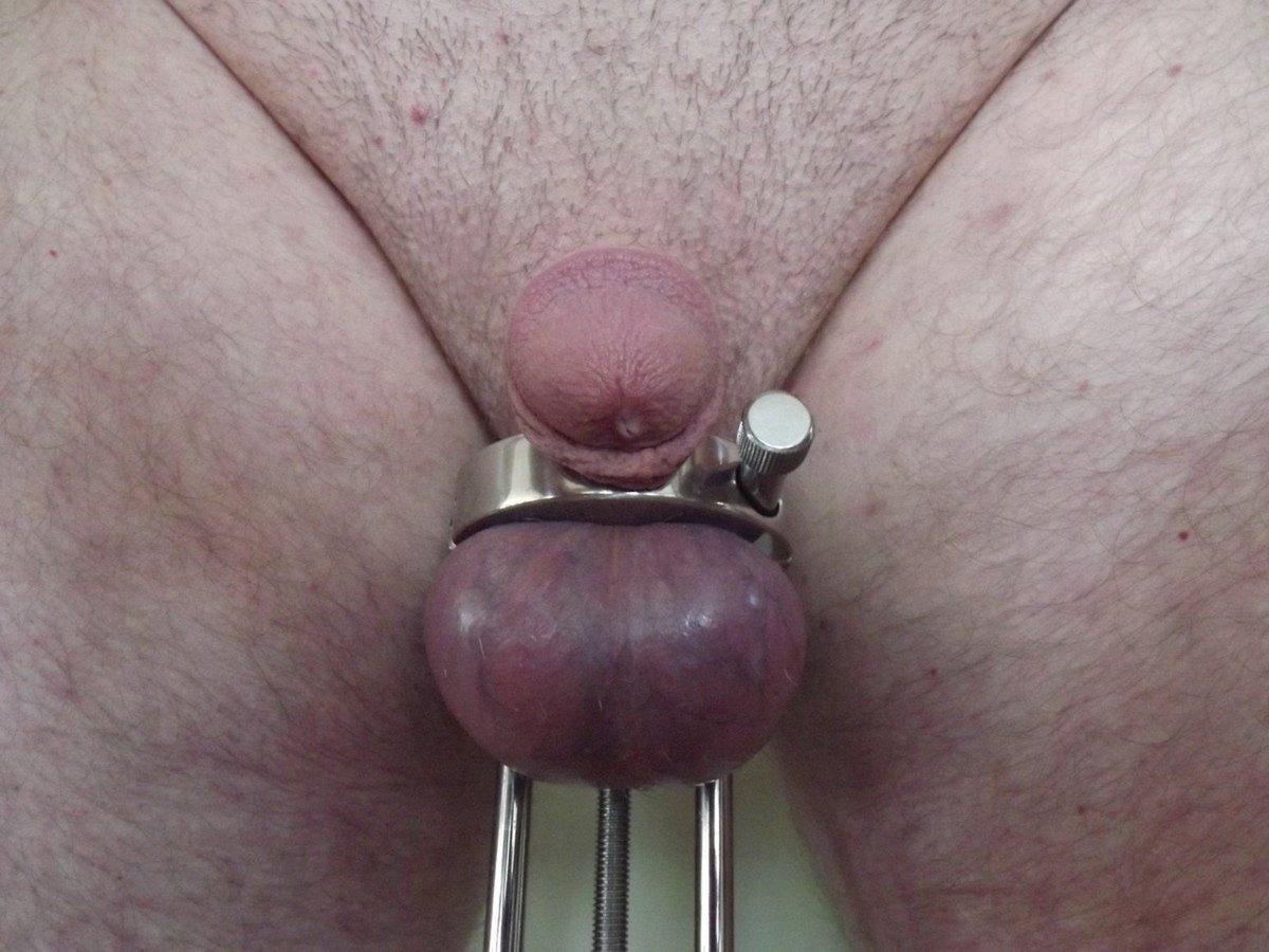 torture bite (17)