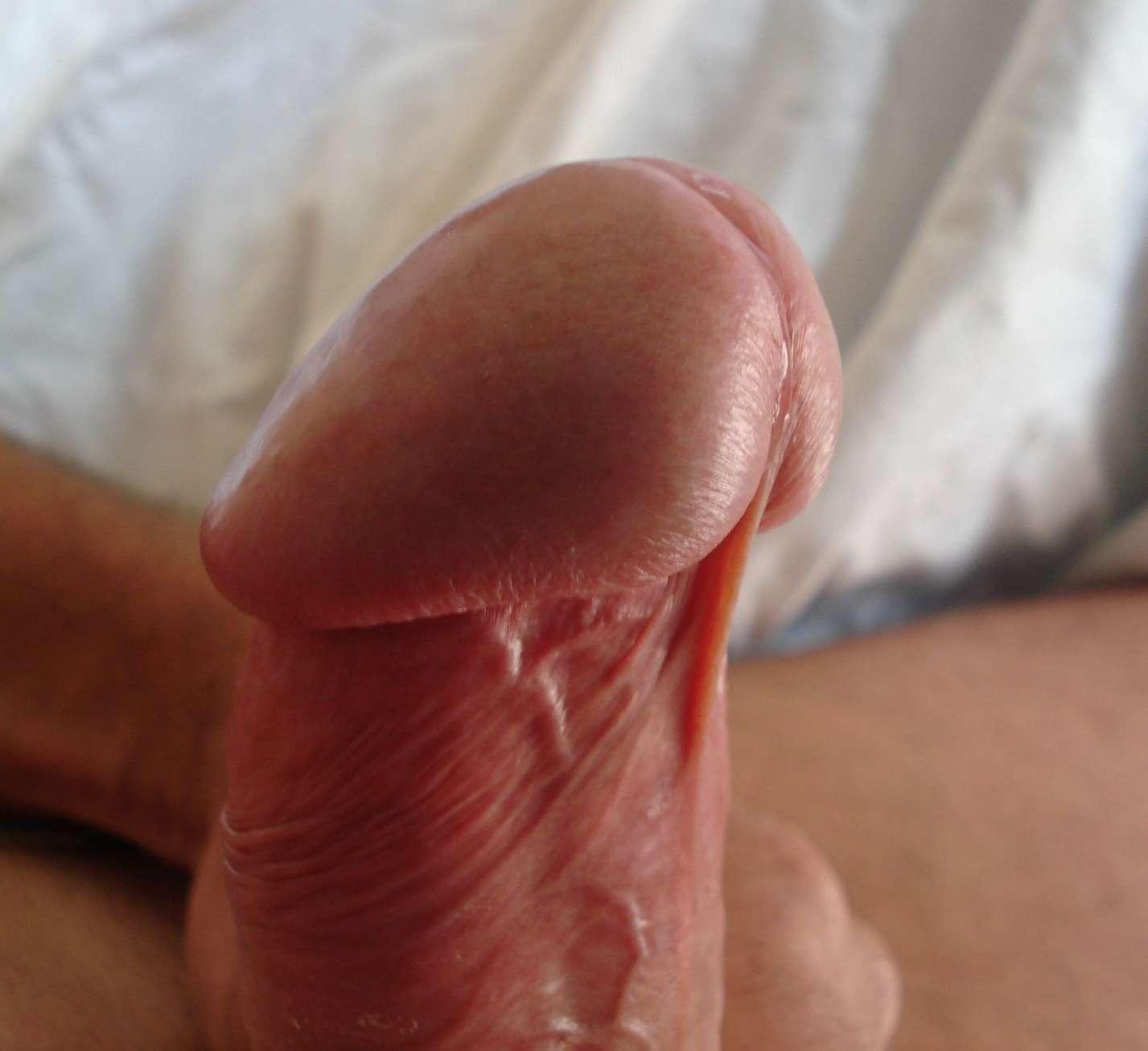 bite john41 (11)